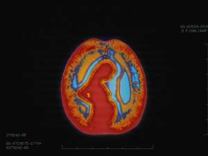 Alzheimer's ad shows a life in brain scans