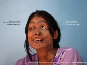 The scars of an acid victim are hard to watch