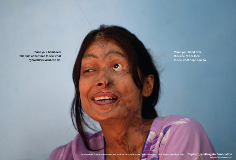 Depilex SmileAgain Foundation: The scars of an acid victim are hard to watch