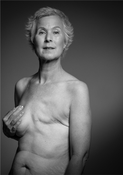 Body Image After Breast Cancer - simply, beautifully, human