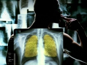 Australian anti-smoking activists revive 35-year-old shock concept